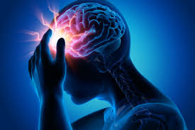 Epilepsy Training